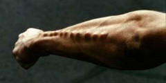 body-implants-arm
