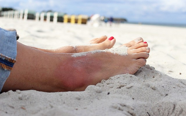 sprained ankle sports injuries