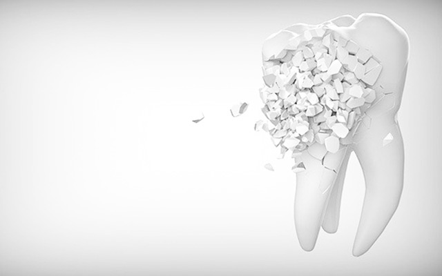 tooth decay dental